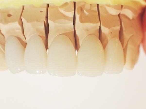 歯の形や大きさにもこだわったセラミック治療