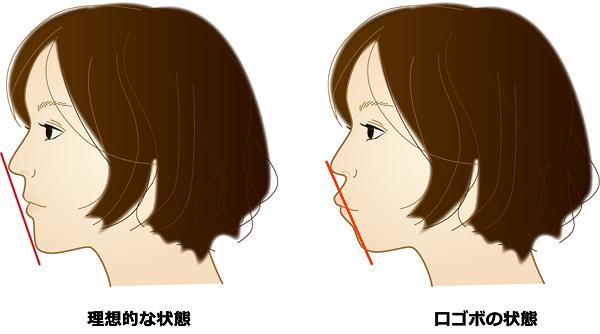 口ゴボの状態