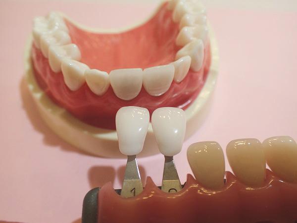 仮歯の色を調整