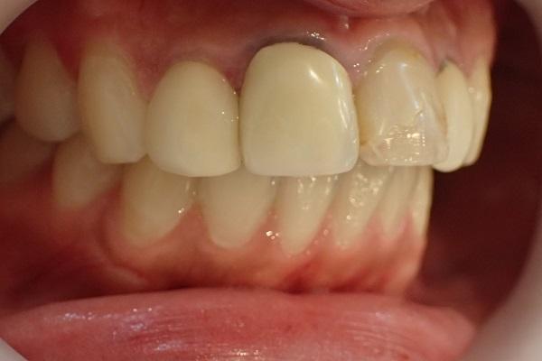 歯茎の黒ずみ治療前