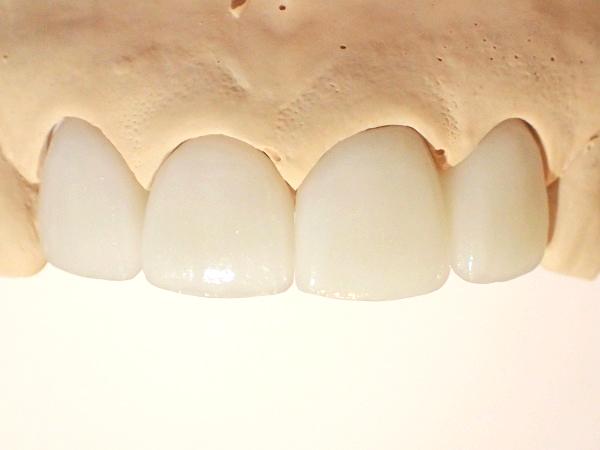 セラミック矯正による口ゴボ治療のシミュレーション