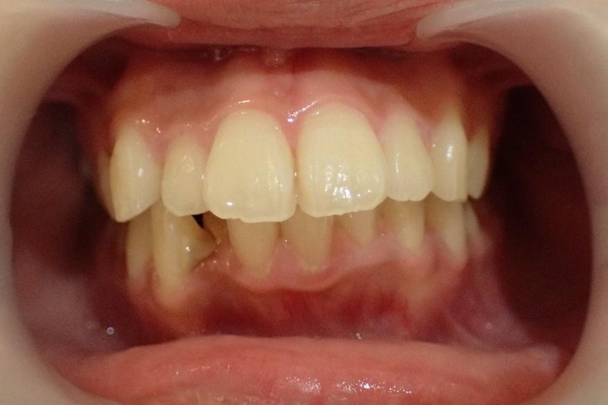 正面から見た口ゴボ治療前の症例