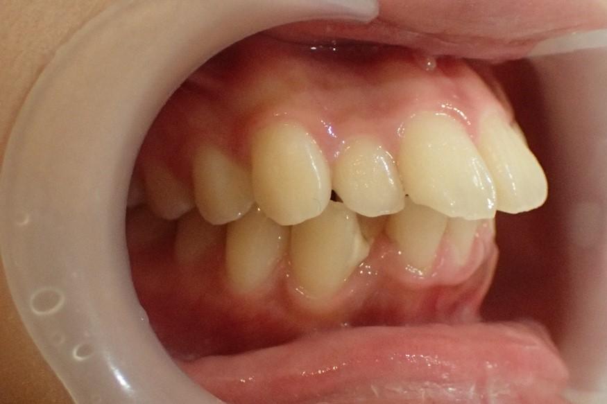 右から見た口ゴボ治療前の症例