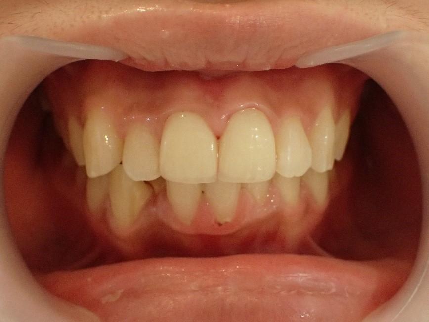 前歯2本の口ゴボ治療後の状態