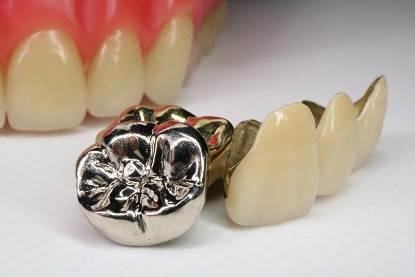 銀歯・被せ物