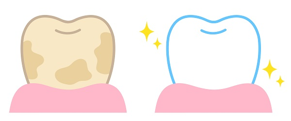 ホワイトニングで歯が白くなるメカニズム