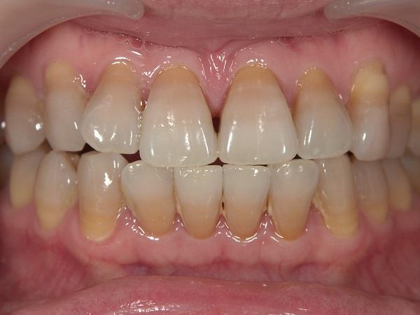 テトラサイクリン歯の状態