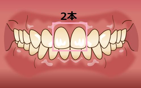 セラミック矯正2本による口ゴボ治療