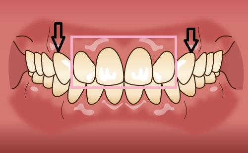 前歯4本にセラミック矯正を行う場合の内側に入れられる位置の基準
