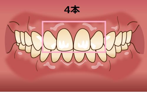 セラミック矯正4本による口ゴボ治療