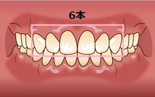 セラミック矯正6本による口ゴボ治療