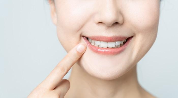 笑ったときに見える範囲の歯をホワイトニング