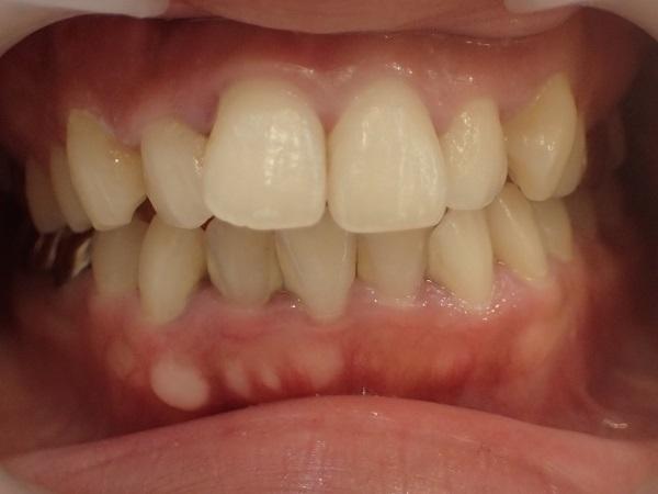 セラミック矯正による口ゴボ治療前