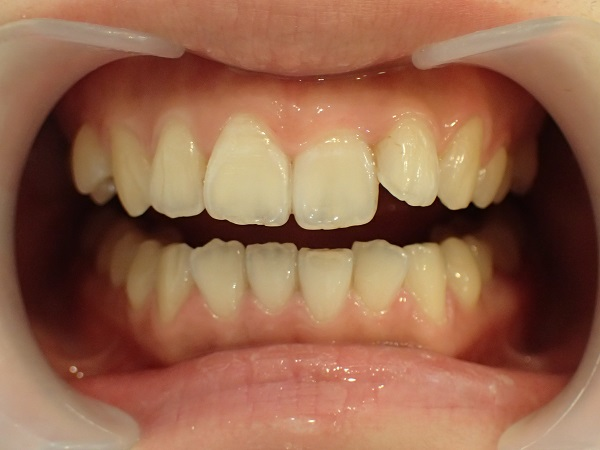 ブライダルホワイトニング前症例写真