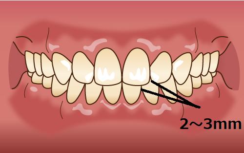 理想的な前歯の噛み合わせ