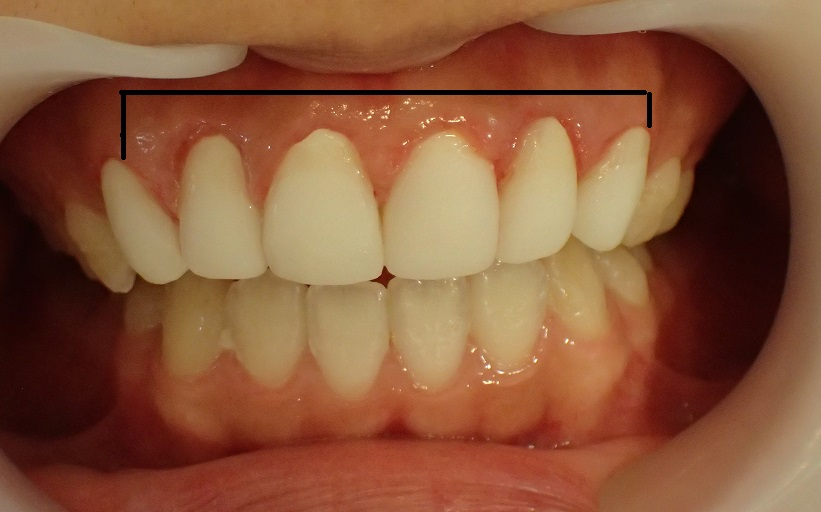 口ゴボ治療における仮歯の段階