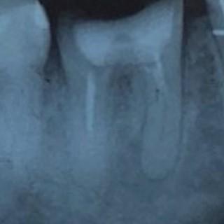 歯の神経の再治療前