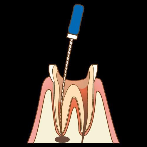 歯の神経の再治療における感染物質の除去