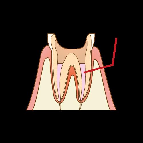 歯の神経の再治療における薬剤による消毒