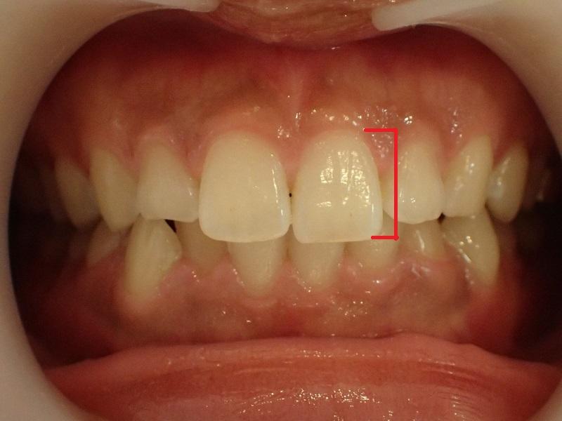 前歯が長い状態