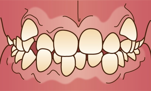 叢生(がちゃ歯)の状態