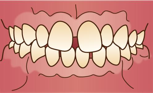 すきっ歯の状態