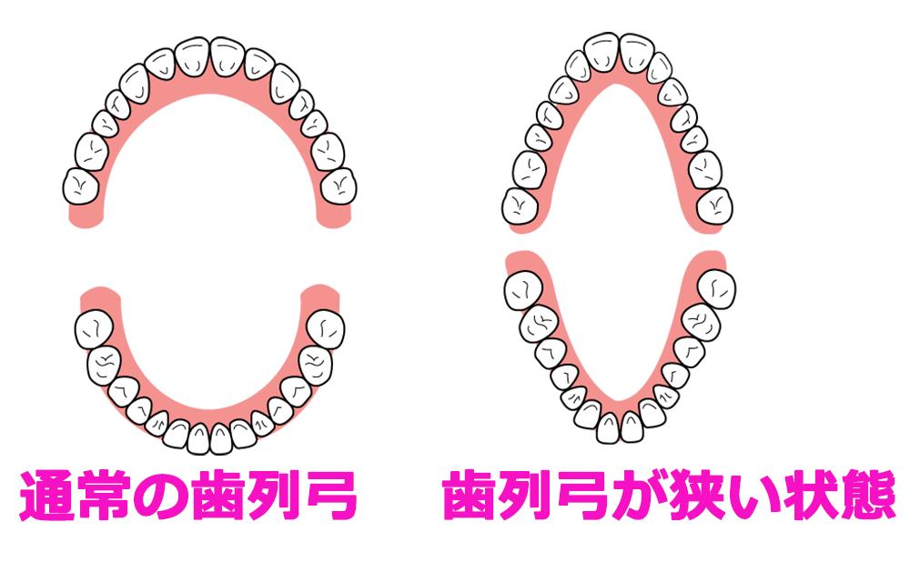 バッカルコリドーと歯列弓の関係
