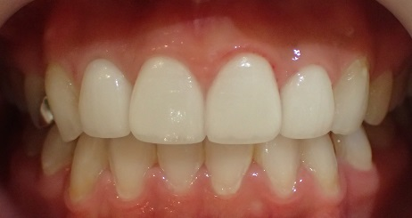 セラミック治療をした歯の例