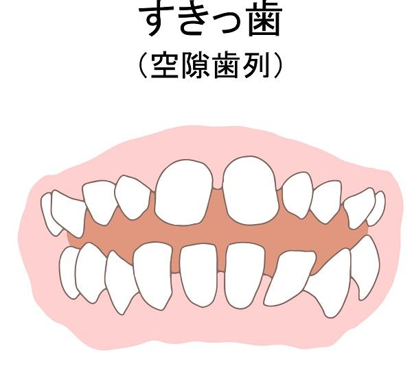 矮小歯によるすきっ歯の状態
