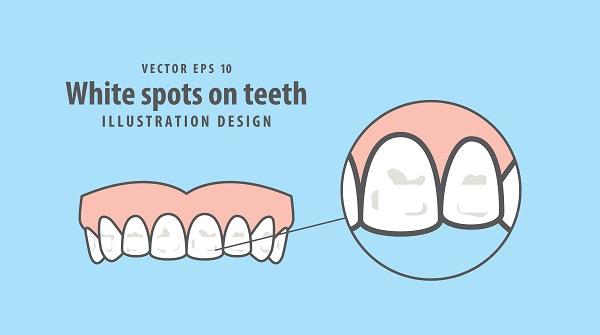 歯のホワイトスポット