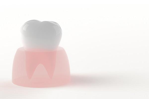 歯の先天性欠如