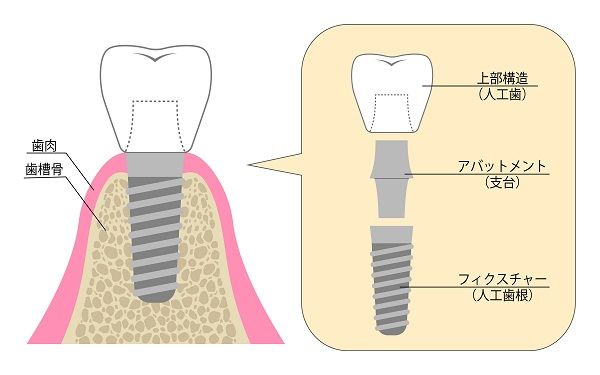 大人乳歯のインプラント治療