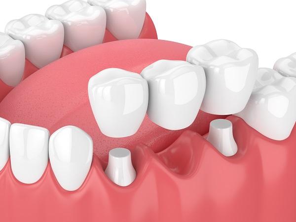 大人乳歯のブリッジ治療