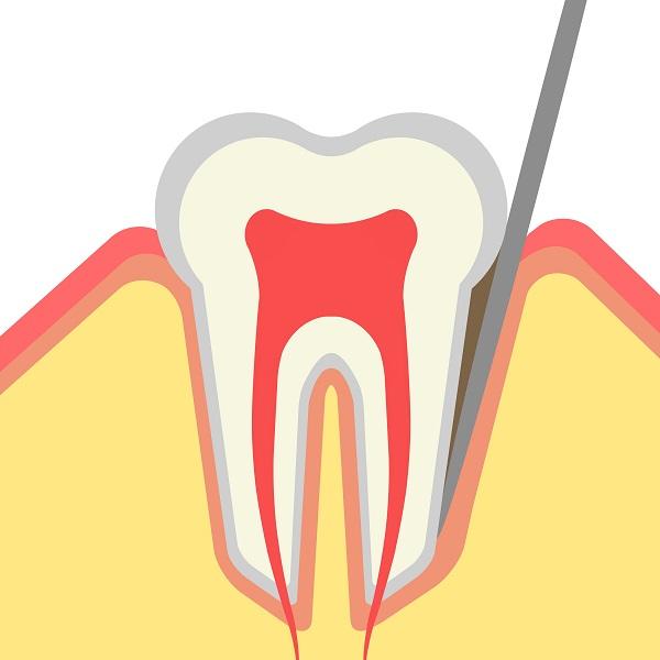MB2根と奥歯の関係