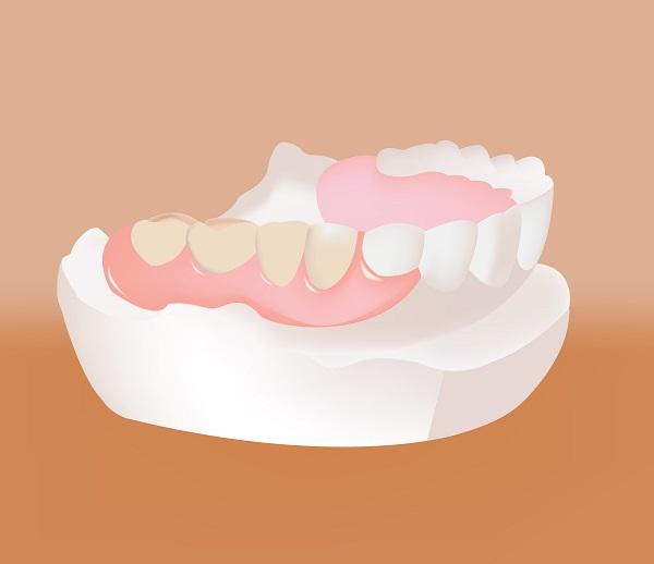 入れ歯による大人乳歯治療
