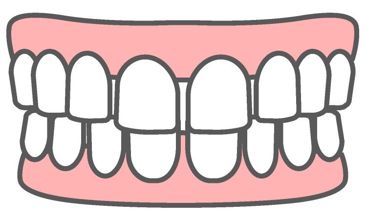 すきっ歯による不正咬合
