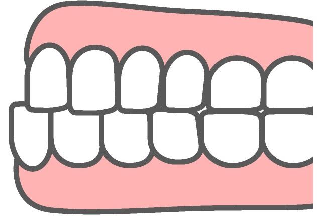 下顎前突による不正咬合