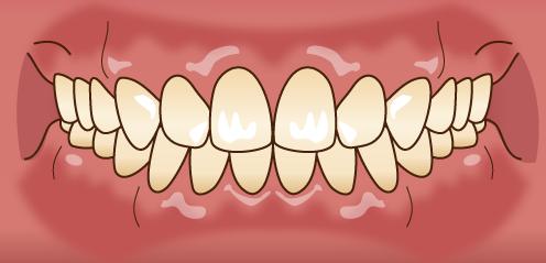 正常な歯並び